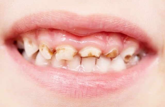 dite-zuby-kaz-zkazene Zánět dásní