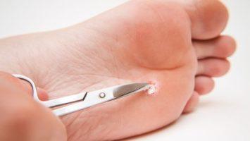 Jak se zbavit bradavic na noze