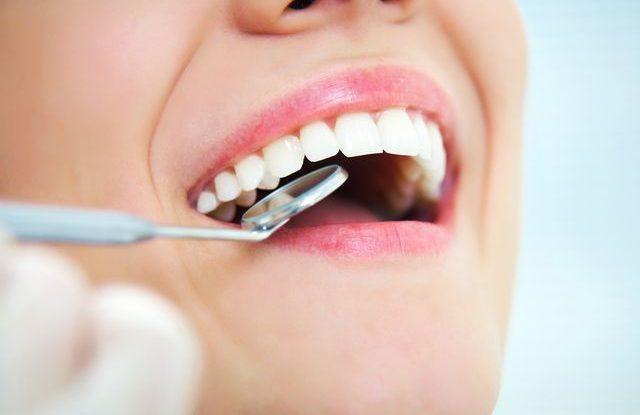 perfektně vyčištěné zuby sonické zubní kartáčky zubař