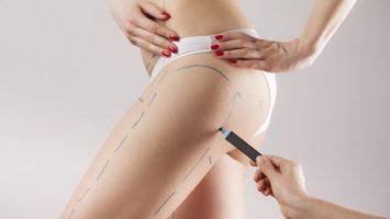 Liposukce plastická operace