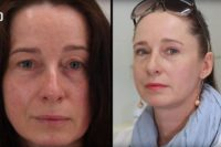 VIDEO: Jak probíhá operace očních víček? Oslní vás rozdíl před a po