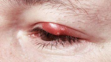 ječné zrno v oku nebo na víčku