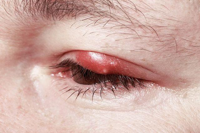 Ječné zrno na oku