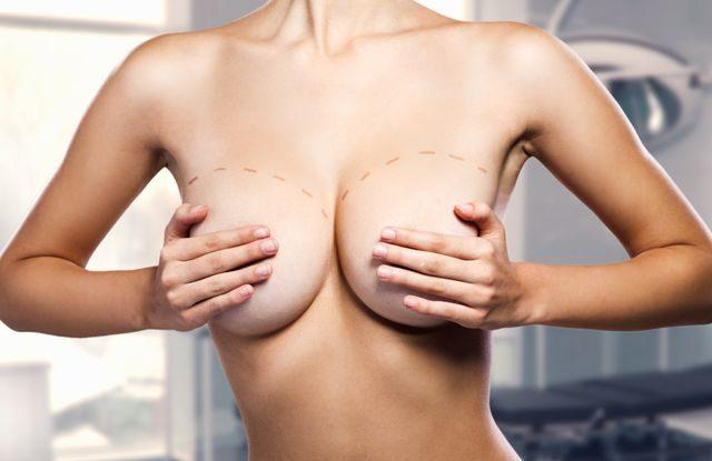 plastická operace prsou
