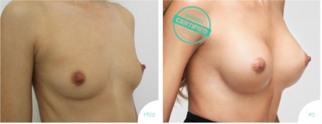 Plastická operace prsou před a po, Brandeis Clinic