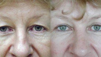 Jak probíhá operace očních víček