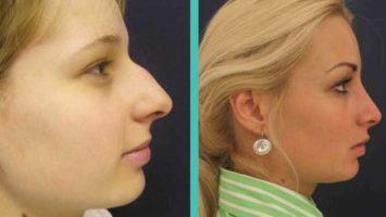 Plastická operace nosu před a po