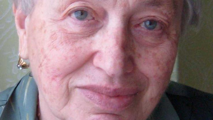 Paní Danka, rakovina se stále vrací