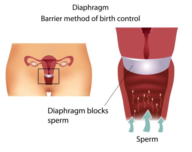 Nehormonální antikoncepce, pesar