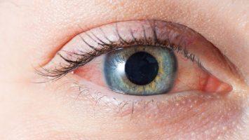 Co na podrážděné oči