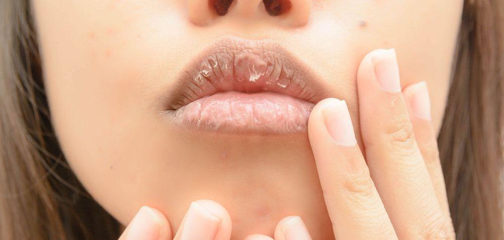 Jak na rozpraskané koutky úst