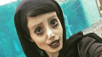 Žena podstoupila 50 operací, aby vypadala jako Angelina Jolie