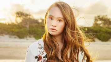 Modelka s downovým syndromem