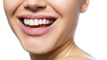 Zubní korunky, krásné zuby