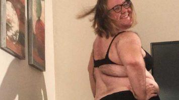 Chlupaté ženy, syndrom polycystických ovarií