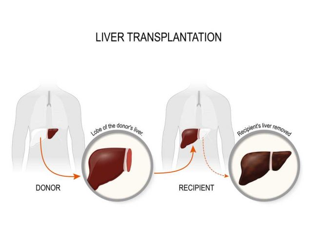 darování jater, transplantace