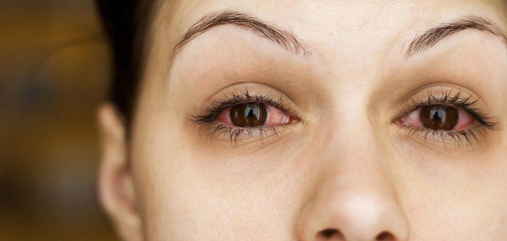 Podrážděné oči a bylinky