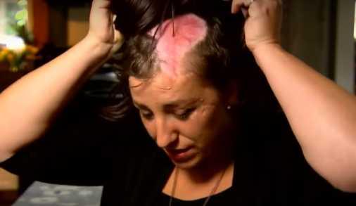 Žena byla skalpována