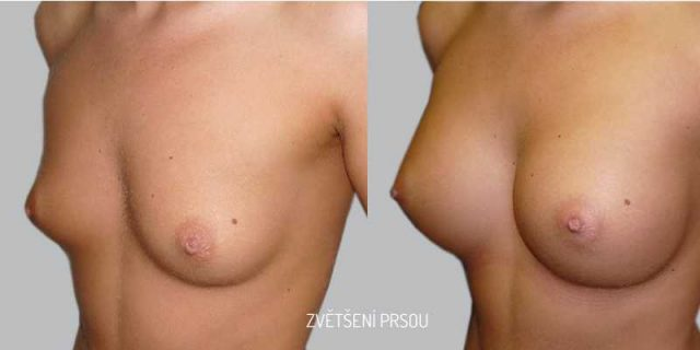 Před a po plastika prsou zvětšení
