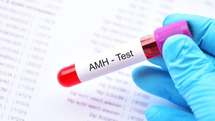 AMH test