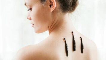 Léčba pijavicemi hirudoterapie