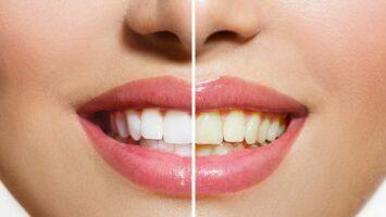 Žluté zuby a nápoje