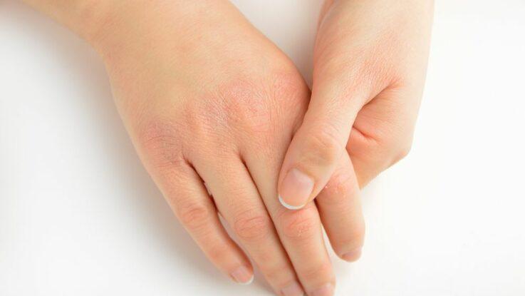 Suché ruce v zimě