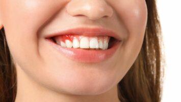 Krvácení z dásní